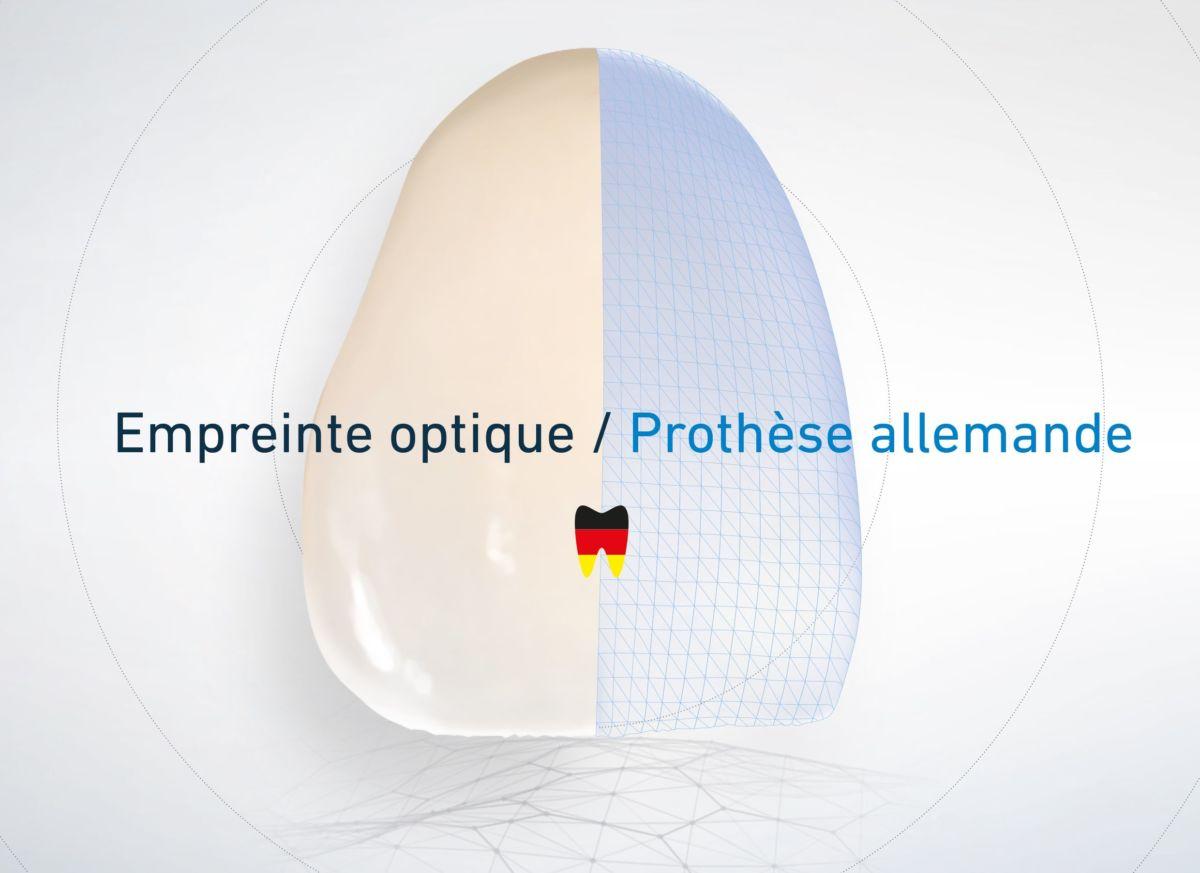 Fabrication allemande pour vos prises d'empreinte optique : rigoureux jusqu'au bout !