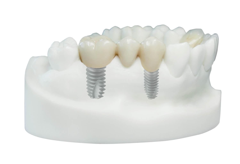forma couronne transvissée sur implant dentaire