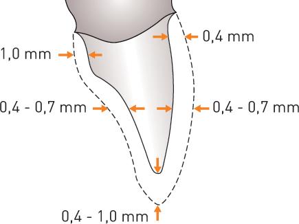Monozir-Ultra-schema-préparation