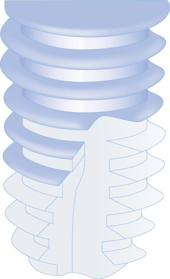 couronne-transvissée-forma
