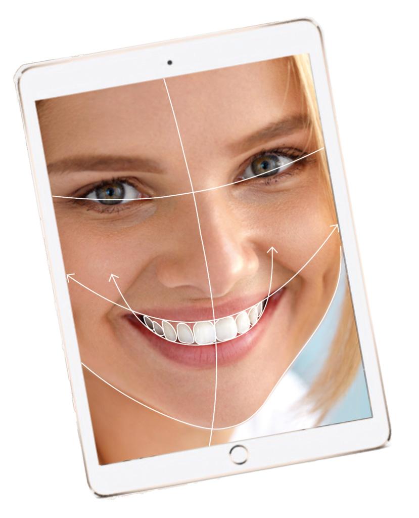 Smile-design Diagnostic approfondi, esthétique et fonctionnel